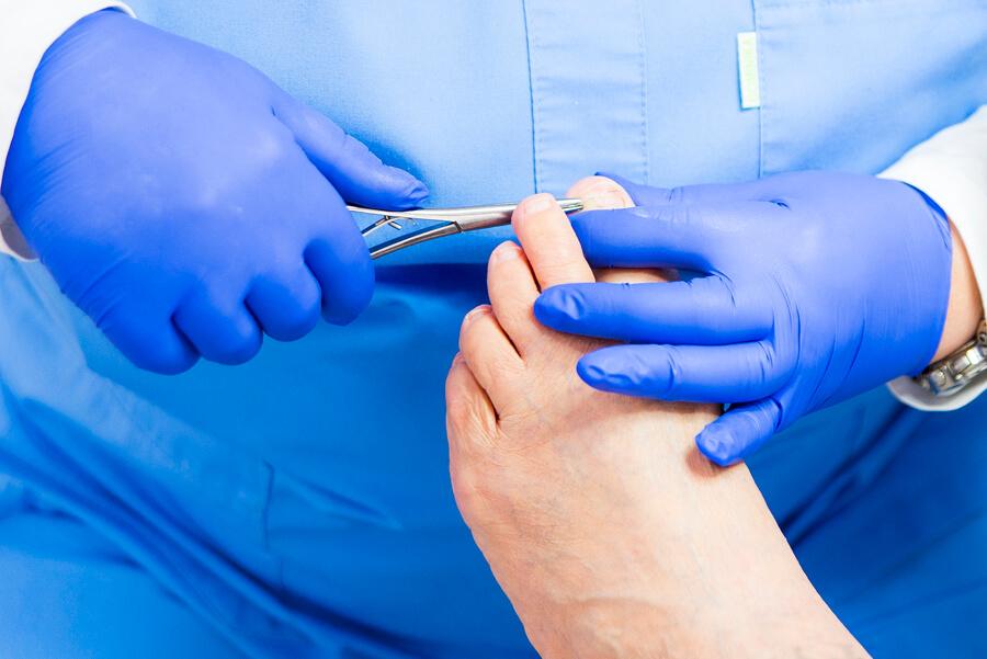 opracowywanie paznokcia